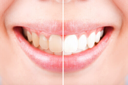 Teeth Whitening Cosmetic Dentistry London